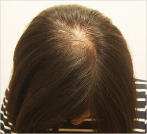 女性頭頂部の薄毛