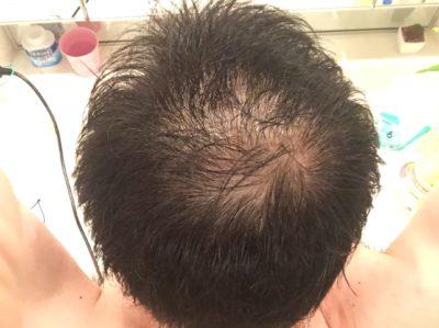 薄い頭頂部